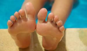 Cracked Heels treatment